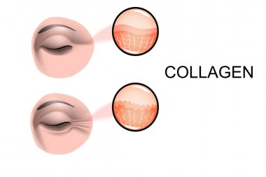 damage to skin collagen. Wrinkles before and after