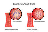 bacterial vaginosis. the vagina and the causative agent