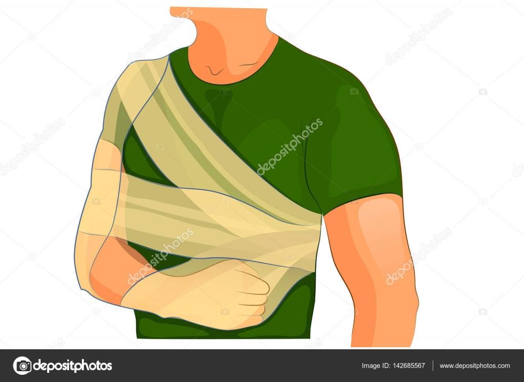 bandage desault bras et l'épaule d'un traumatisme — Image ...
