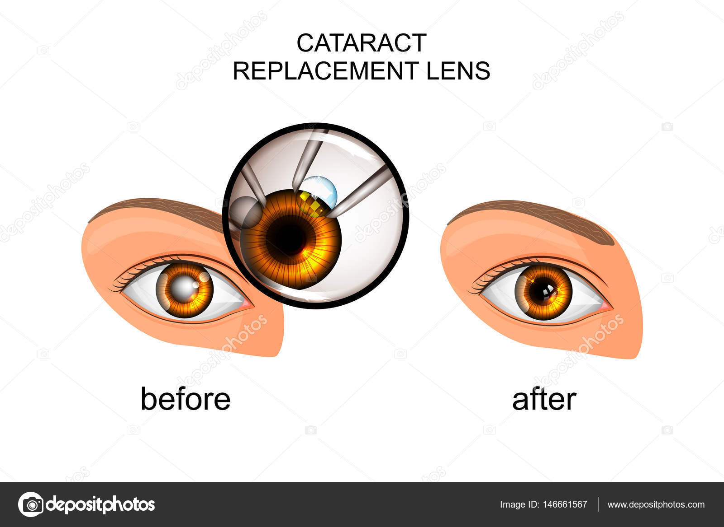 Remplacement du cristallin de cataracte — Image vectorielle Artemida ...