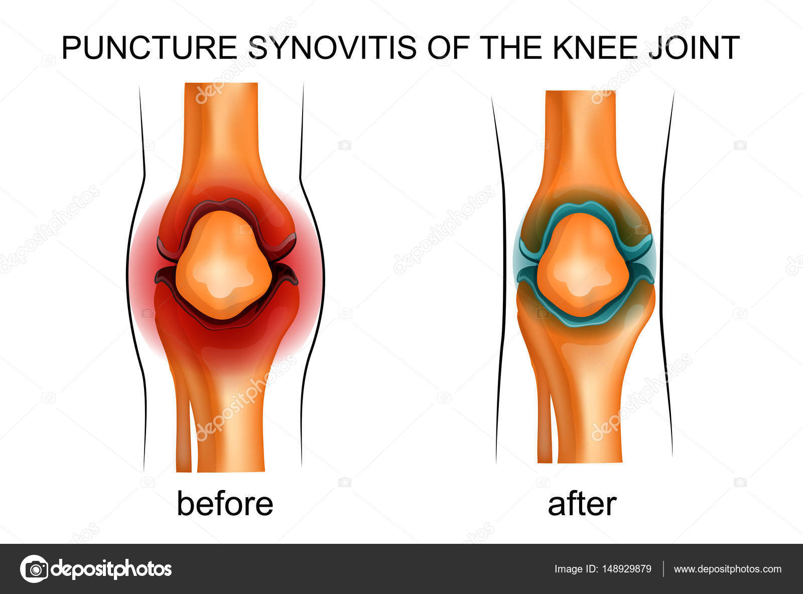 Puncture synovitis of the knee joint stock vector artemida psy puncture synovitis of the knee joint stock vector ccuart Choice Image