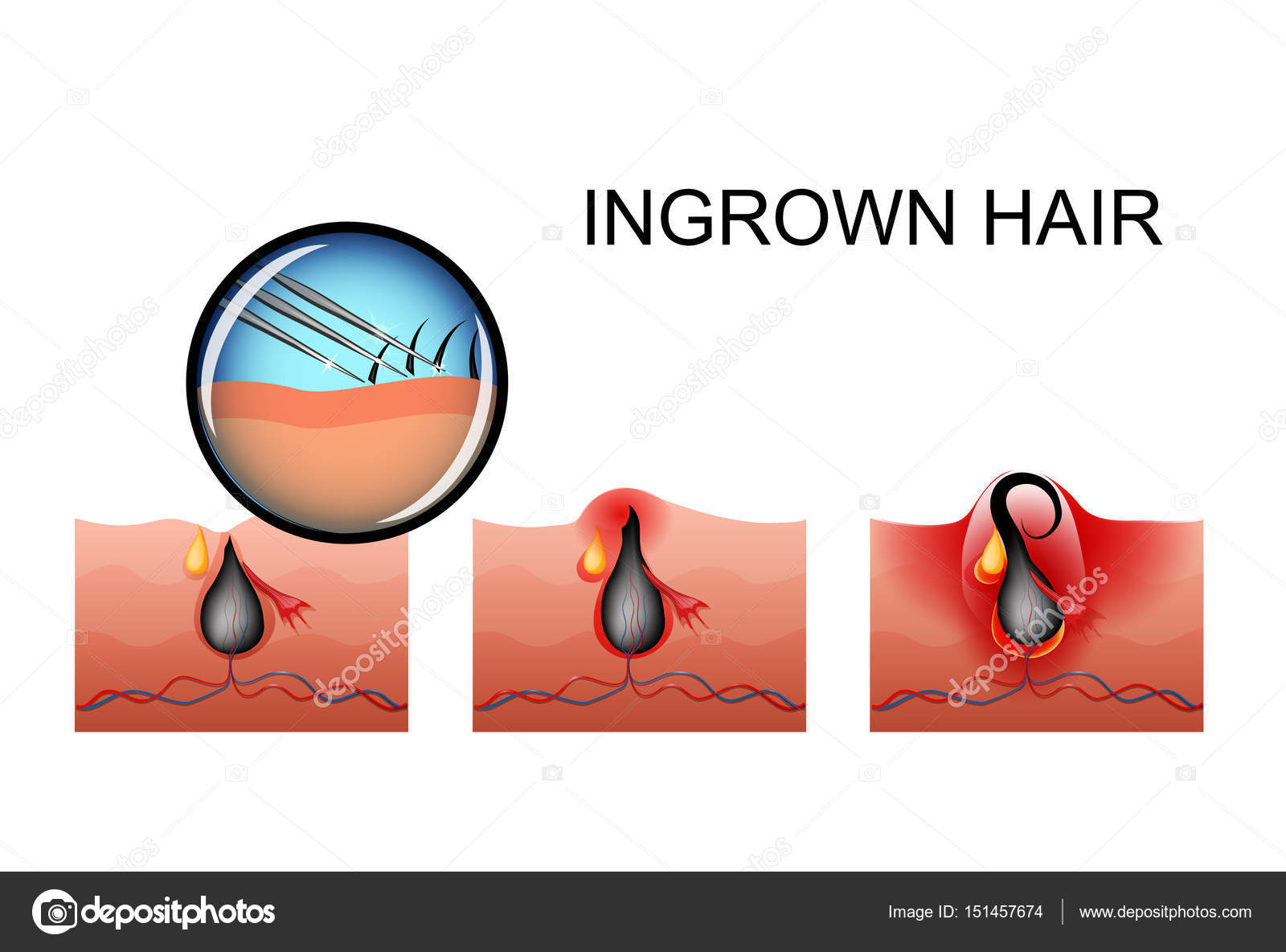Ingrown Hair Pimple Ripening Stock Vector Artemida Psy 151457674