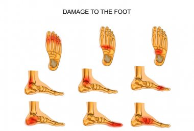 damage to the foot