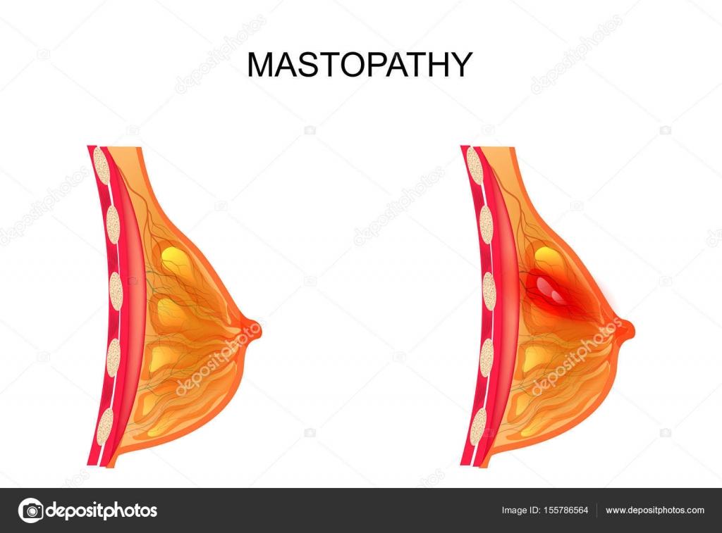 Mastopathie. gesunden und erkrankten Brustdrüse — Stockvektor ...