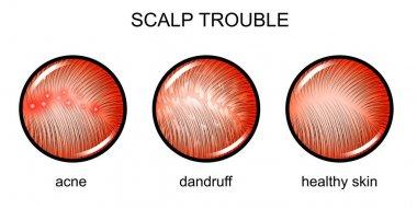 troubled scalp. dermatology