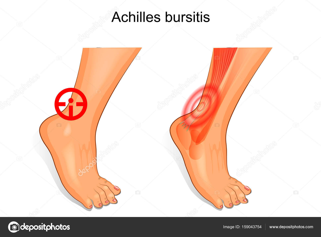 der Fuß ist von Achilles Schleimbeutelentzündung betroffen ...