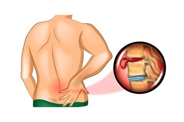 back pain. damage to the spine