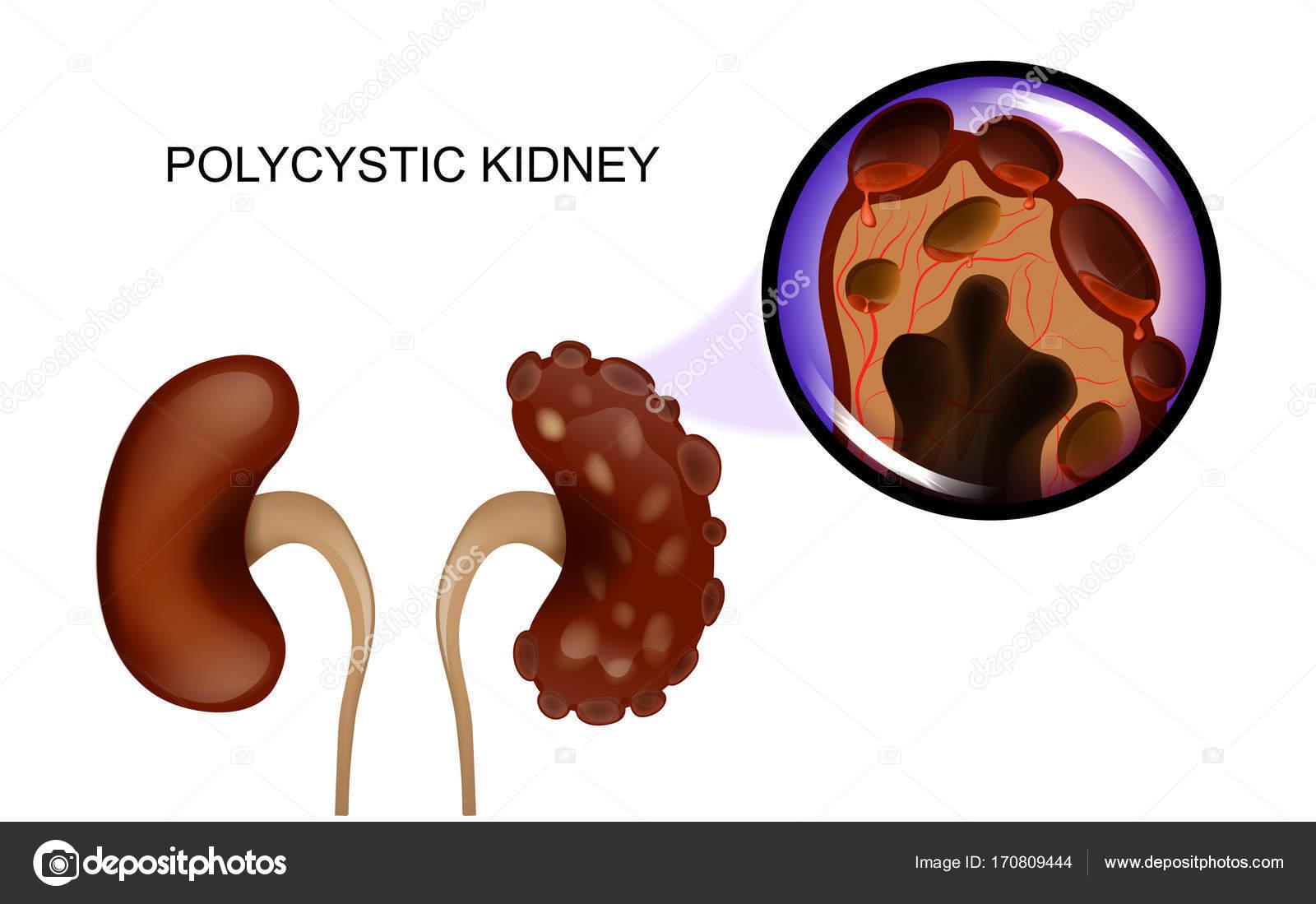 eine gesunde Niere und eine mit polyzystischen Nieren — Stockvektor ...