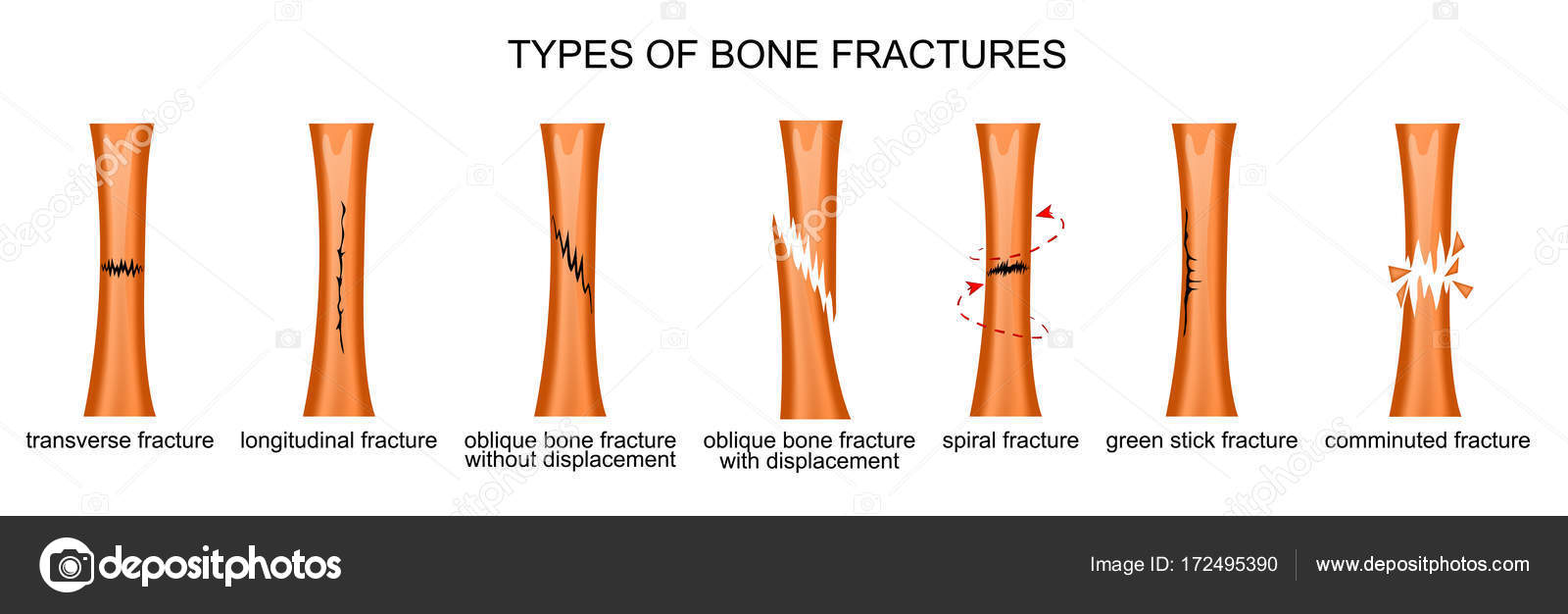 types of bone fractures — Stock Vector © Artemida-psy #172495390