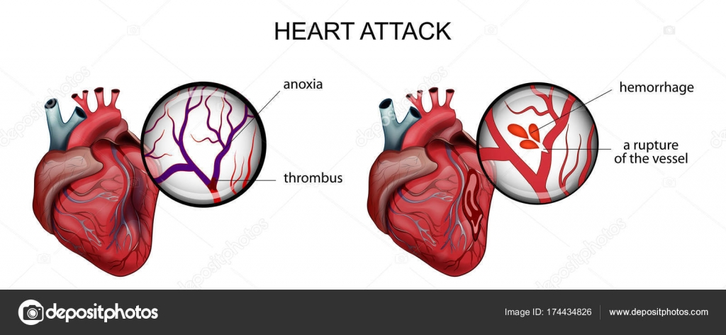 myocardial infarction. thrombosis and hemorrhage — Stock Vector ...