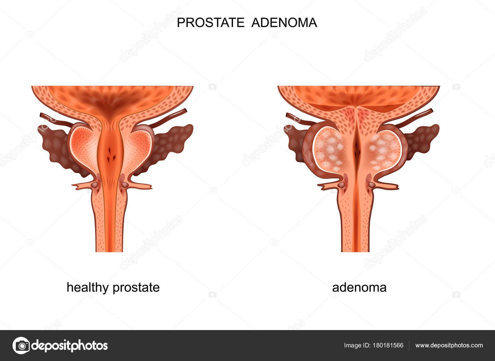 gesunde Prostata und Bph — Stockvektor © Artemida-psy #180181566