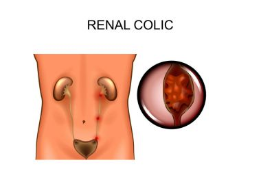 renal colic. locations