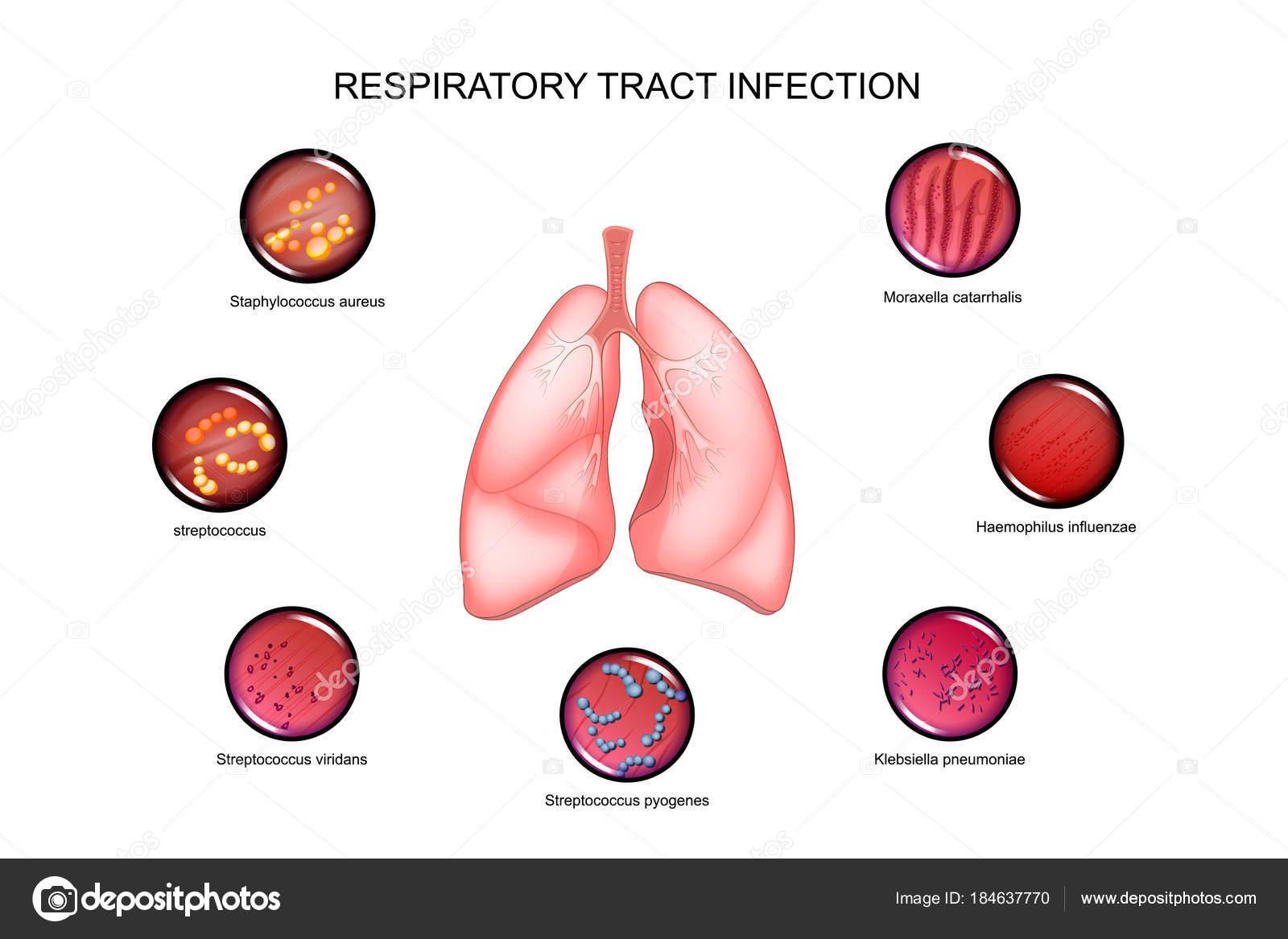 Lunge und Atemwege — Stockvektor © Artemida-psy #184637770
