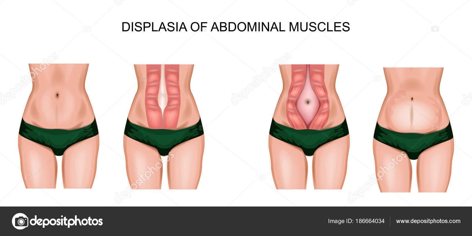 Diastase der Bauchmuskeln — Stockvektor © Artemida-psy #186664034