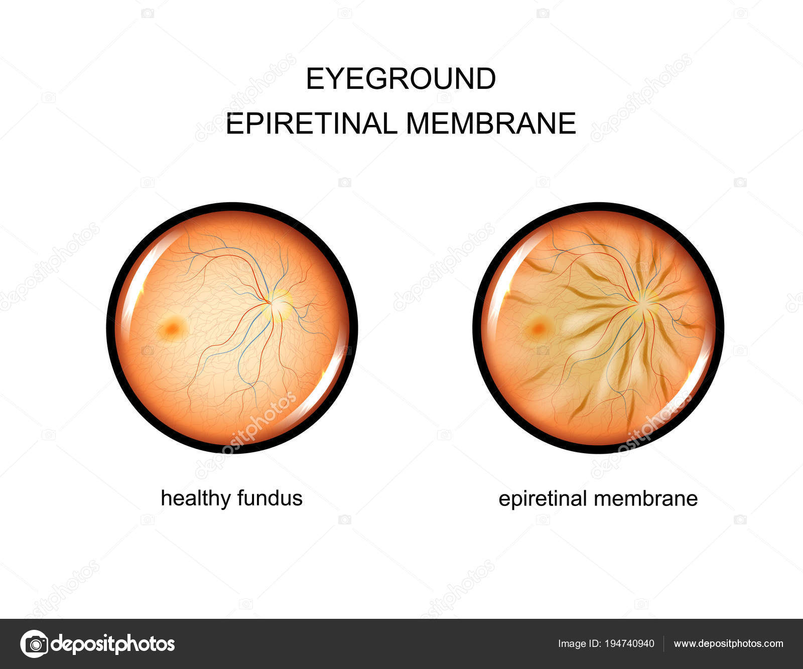 Vector Illustration Of The Fundus Epiretinal Membrane By Artemida Psy