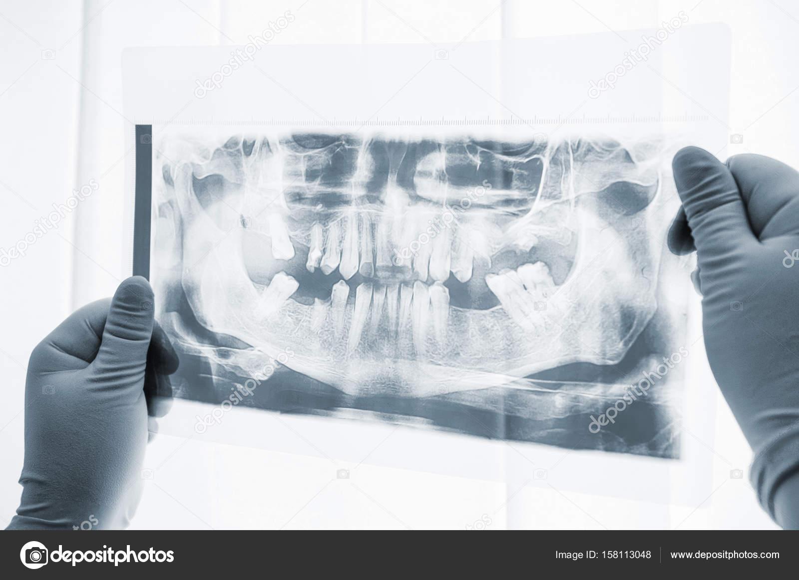Exploración de rayos x preparación de cirugía dental Close-up ...