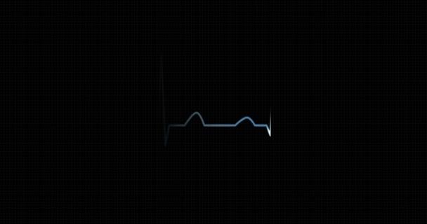 Srdečního rytmu Ekg, EKG. Srdeční puls