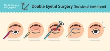 Vector Illustrated set with double eyelid surgery