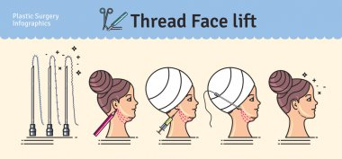 Vector Illustrated set with face lifting surgery by threads