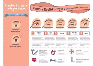 Vector Illustrated set with double eyelid surgery. Non-incisional technique