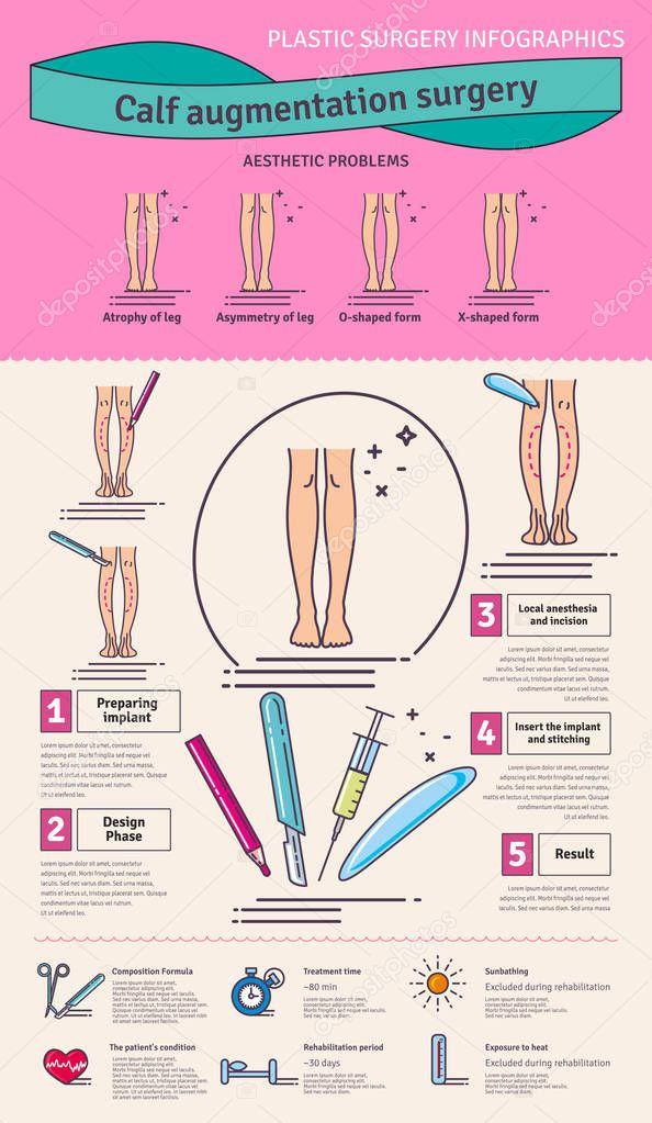 Vektor Illustrated set mit Kalb Augmentation Chirurgie — Stockvektor ...