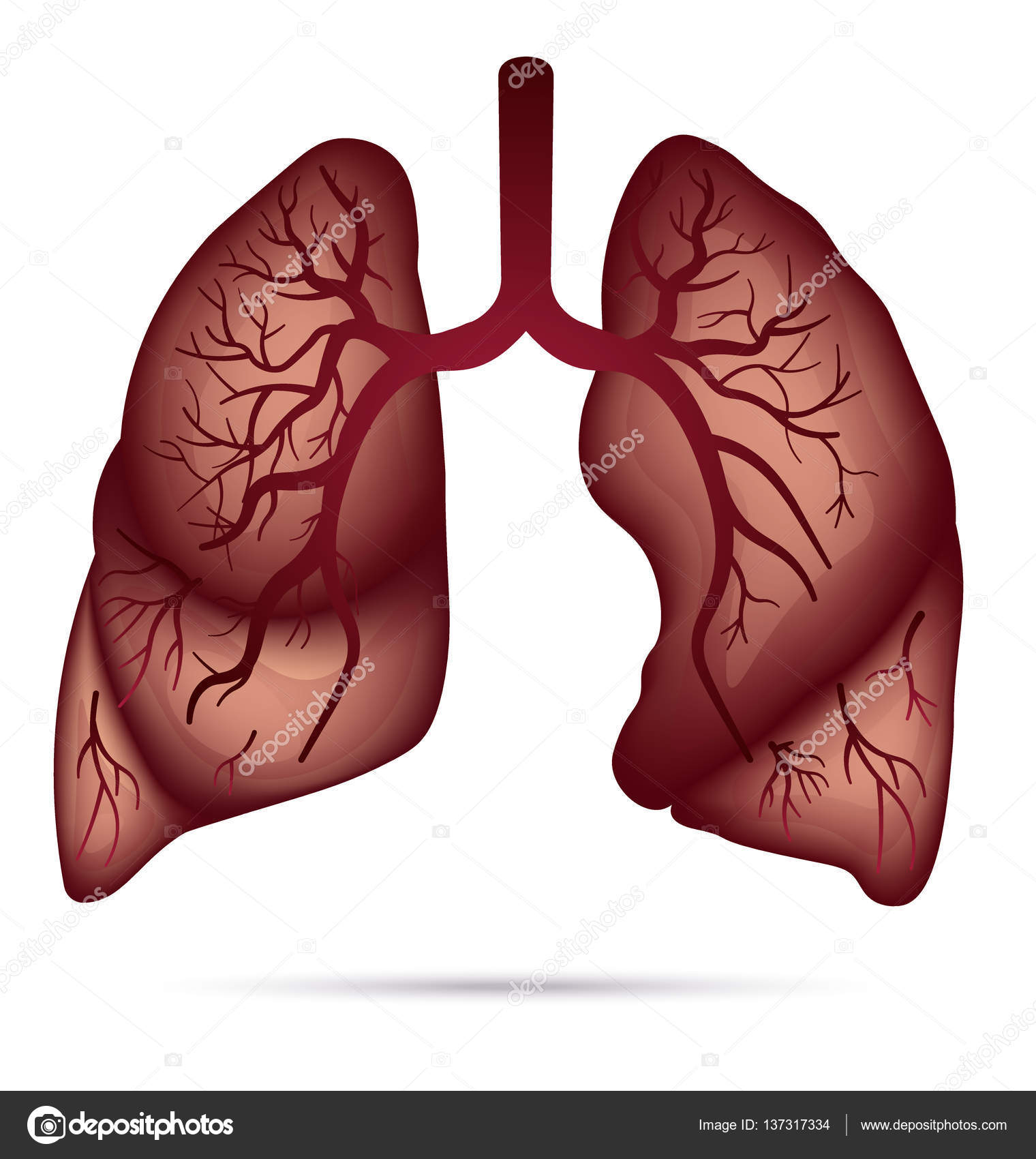 More Lung Disorders | BioNinja |Human Lungs With Asthma