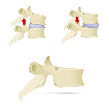 Spine, lumbar vertebra. Facet syndrome, advanced uncovertebral arthrosis, degenerative changes in lumbar vertebra, vertebral bone, lateral view. Flat style, vector illustration
