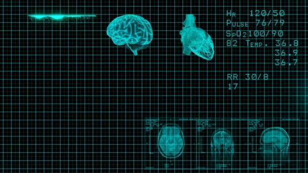 EKG Monitor. Modrá EKG monitor zobrazuje zdravé srdeční tep. Bezešvá smyčka