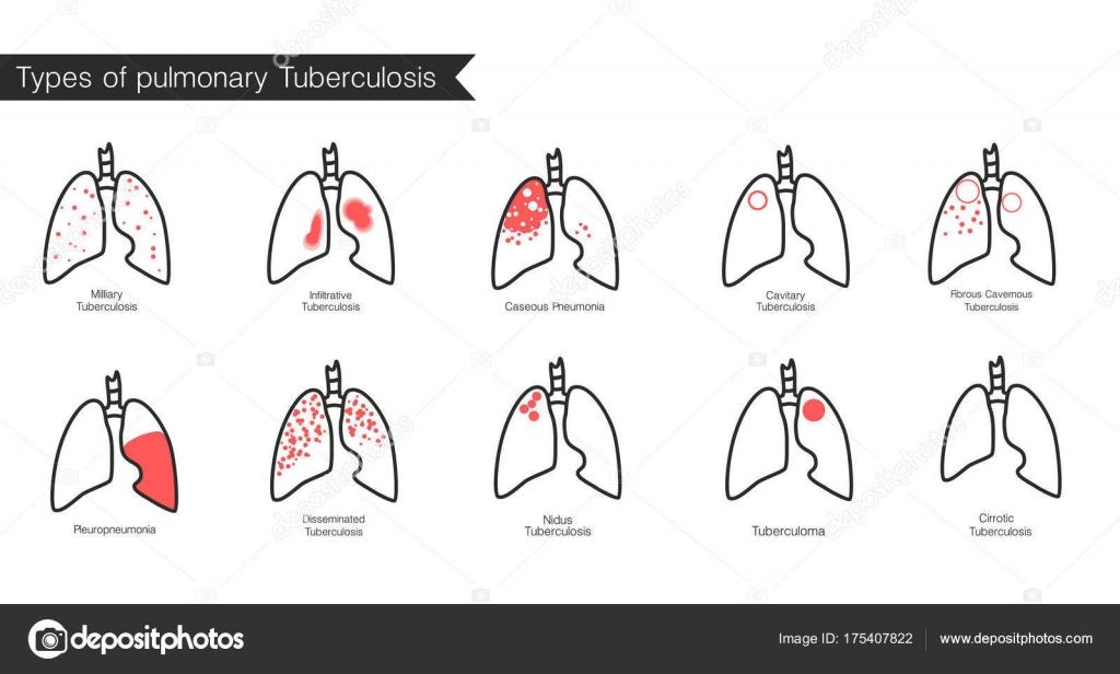 Arten von Tuberkulose. Vector Silhouette medizinische Illustration ...