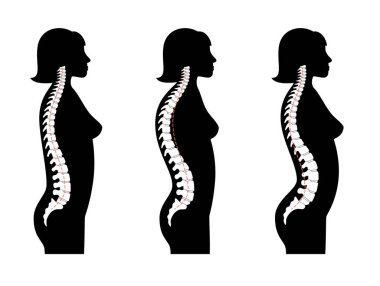Kyphosis, lordosis flat vector illustration.