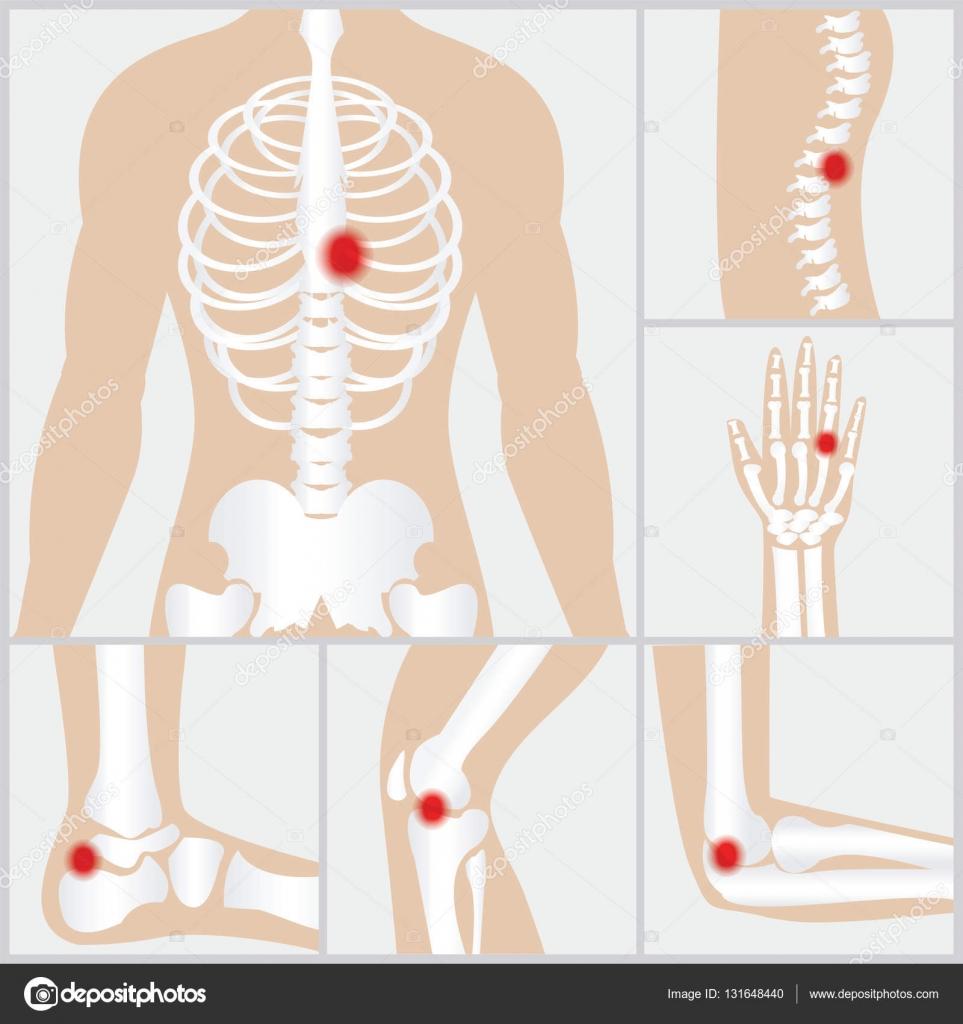 Enfermedad de las articulaciones y huesos — Vector de stock ...