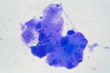 Buccal mucosa cells and bacteria colored with methylene blue