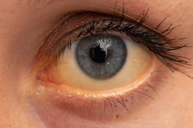 A closeup view on the eye of a young Caucasian adult with yellowing of whites (jaundice). A common symptom of liver failure that requires urgent medical attention.