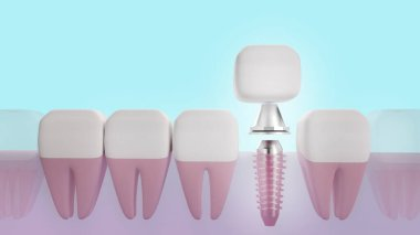 The Dental implant 3d rendering image for medical content