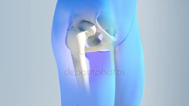 Имплантация тазобедренного сустава видео лечение суставов в новороссийске