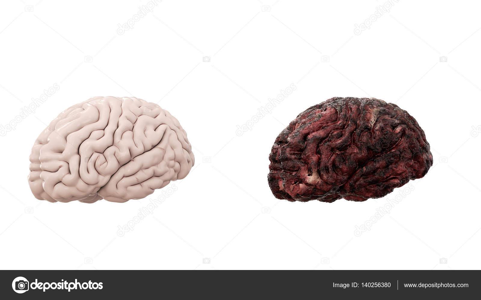 gesundes Gehirn und Krankheit Gehirn auf weißen isolieren. Autopsie ...