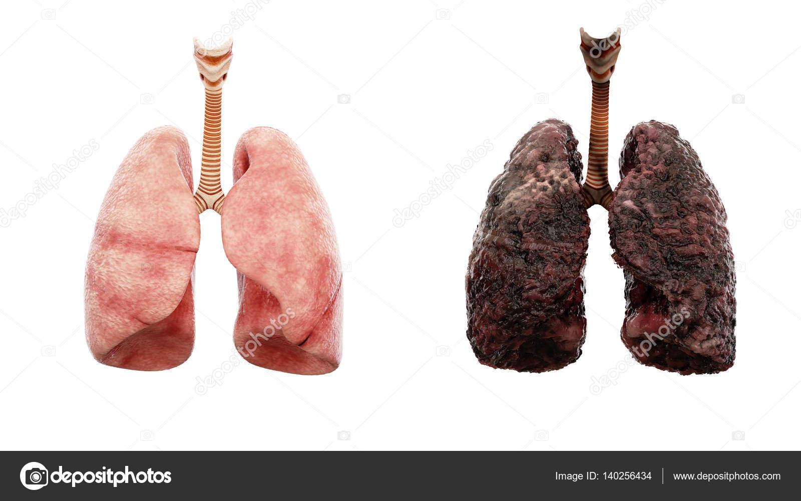 vad händer med lungorna när man röker