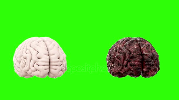 healthy brain and disease brain on green screen rotate. Autopsy medical concept. Cancer and smoking problem.