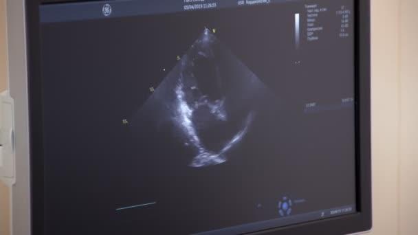 diagnostic sonography in medical clinic, closeup view of display
