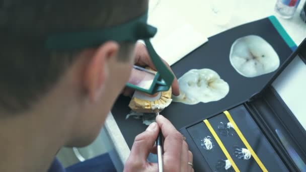 Close-up of a dentist polish ceramic implant of human jaw 4K