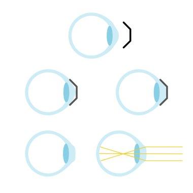 orthokeratology mechanism principle