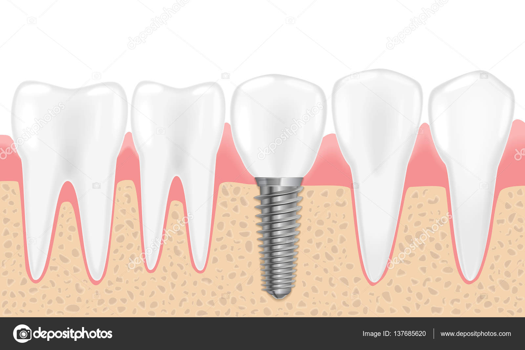 Gesunde Zähne und Zahnimplantate. Realistische Vektor-Illustration ...