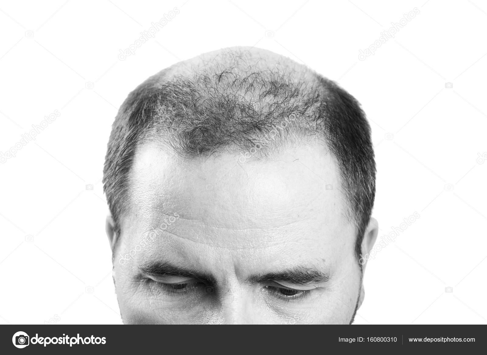 co na wypadanie włosów facet