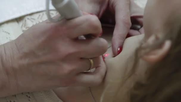 Laserové odstranění mateřských znamének
