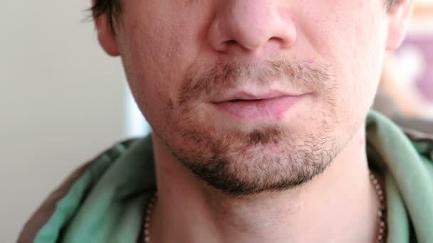Man Vidrör Sår På Läpparna Herpes Läppbehandling Närbild Av De