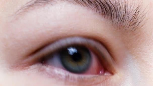 Close up of a severe bloodshot red eye. Viral Blepharitis, Conjunctivitis, Adenoviruses. Irritated or infected eye. Corona virus