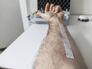 Allergy skin prick test in laboratory