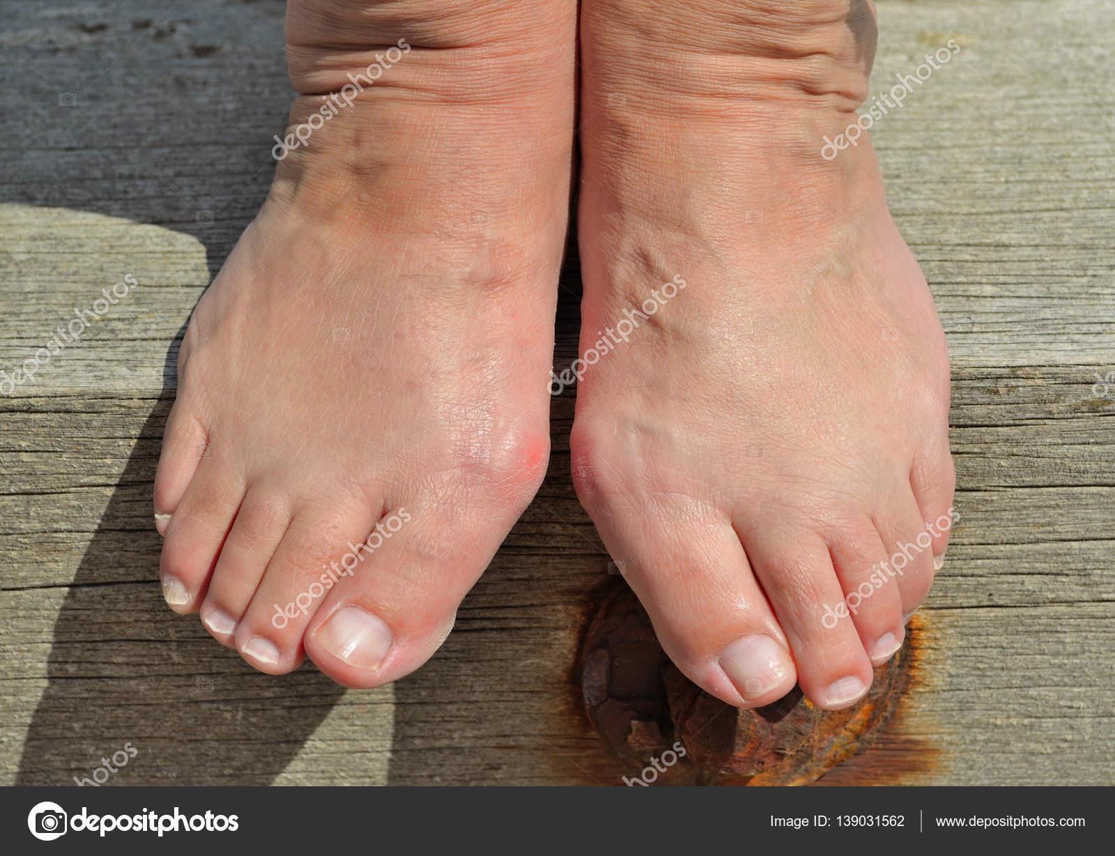 bulto doloroso en el pie