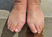 vbočený palec bolestivé, kostnaté knedlík, který se může vyvinout na straně nohou