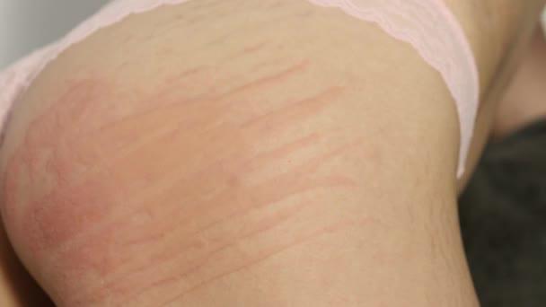 allergische reactie huid rode vlekken